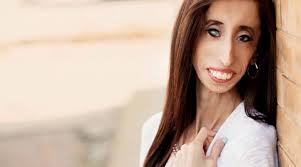 Lizzie Velasquez was called the 'world's ugliest,' now she's a global inspiration