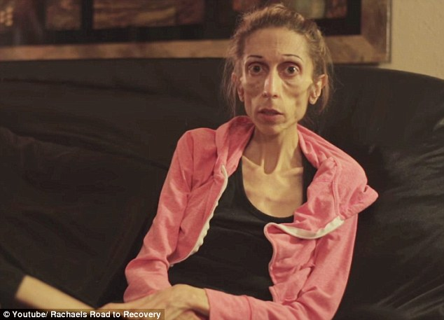 Our hearts go out to this woman suffering from anorexia, who is asking the world to help her recover