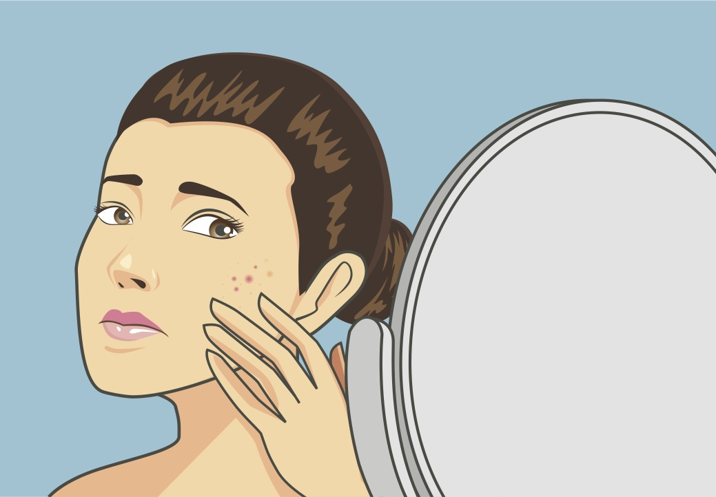What you should know about adult acne