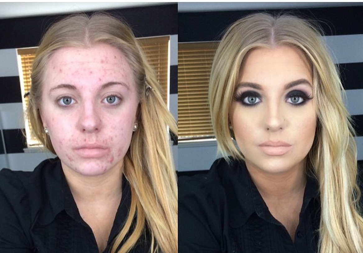 After her skin condition went viral, this rad lady took a stand against bullies