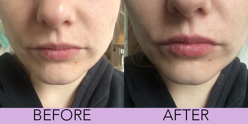I tried DIY hacks for chapped lips and found the only one that works