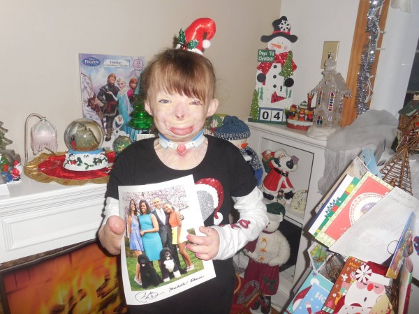 That little girl who lost her family in a fire received a million Christmas cards