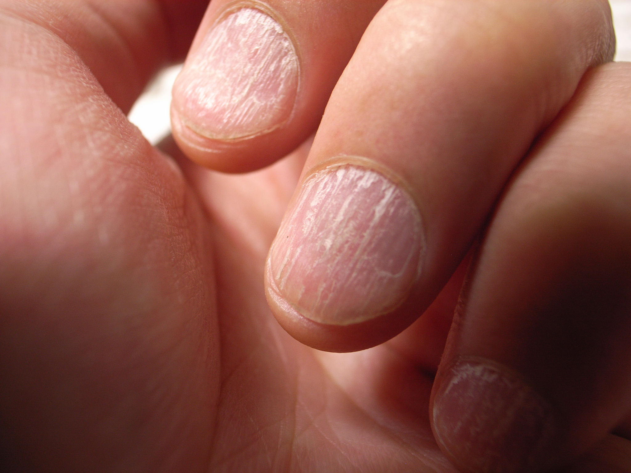 What these common nail problems could be telling you about your health