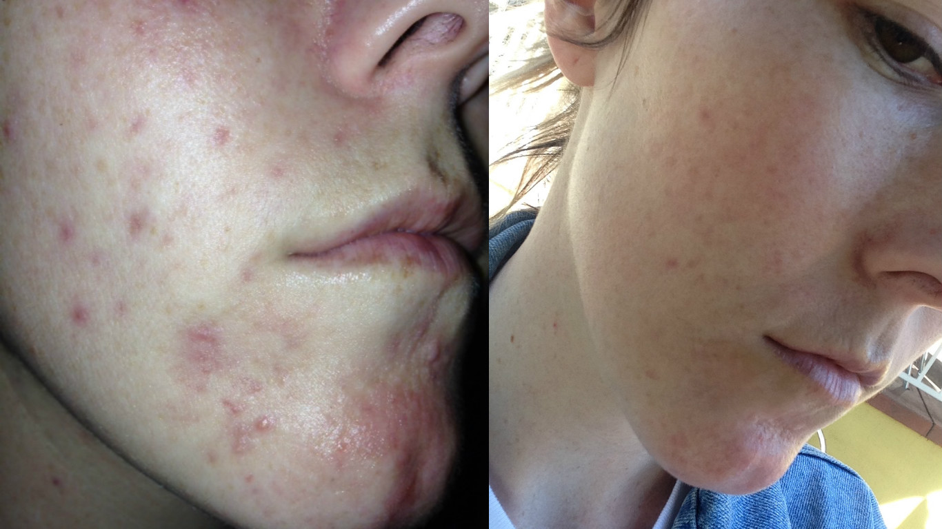 acne adult aldactone in woman