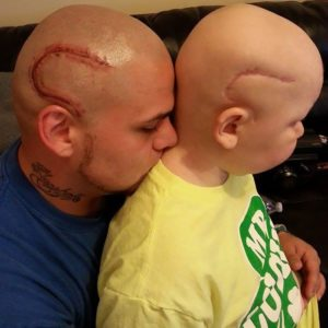 This amazing dad got a scar tattoo to make support his son who has cancer