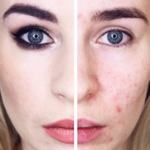 Why this beauty blogger documented her struggles with acne medication for a month