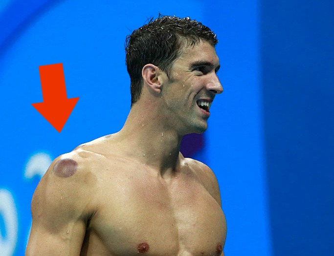 This is why Michael Phelps has all those spots on his body