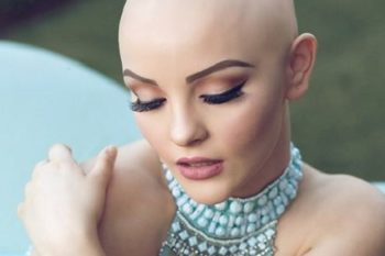 This teen girl's fiercely gorgeous photos about losing her hair to chemotherapy are going viral