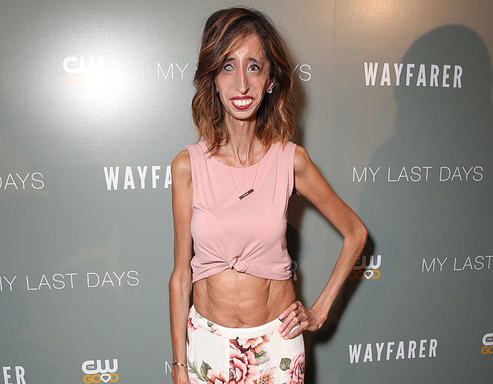 Here Is Another Reminder That Quot World S Ugliest Woman