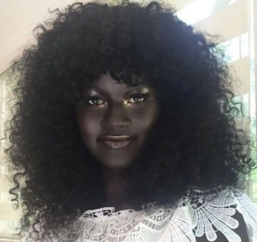 A gorgeous young woman once bullied for her dark skin is now a successful model