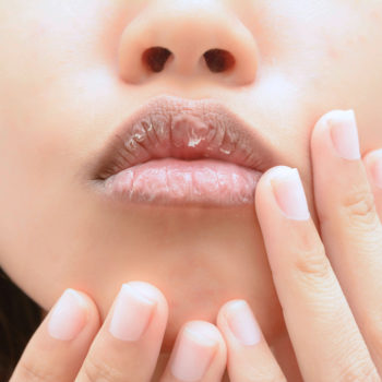 If your lips are chapped, THIS might be the surprising culprit