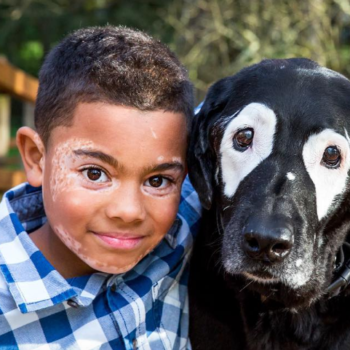 This boy became best friends with a dog who has the same rare skin condition