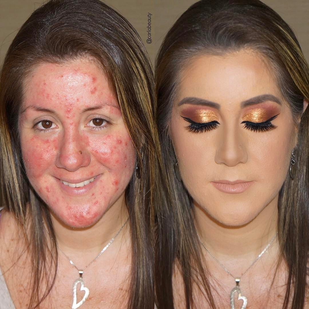 People have a LOT of thoughts about this acne makeover Instagram post
