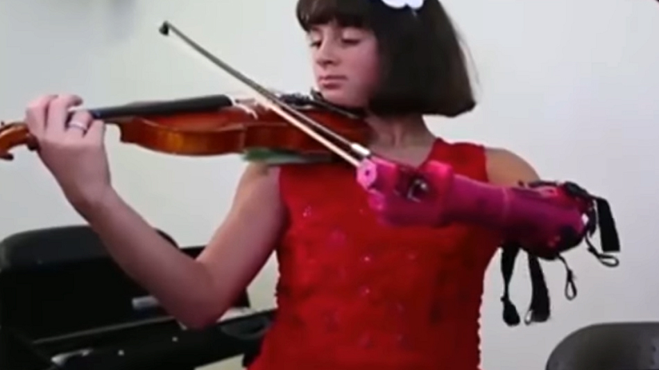 This young violin player got a new prosthetic arm thanks to a 3D printer