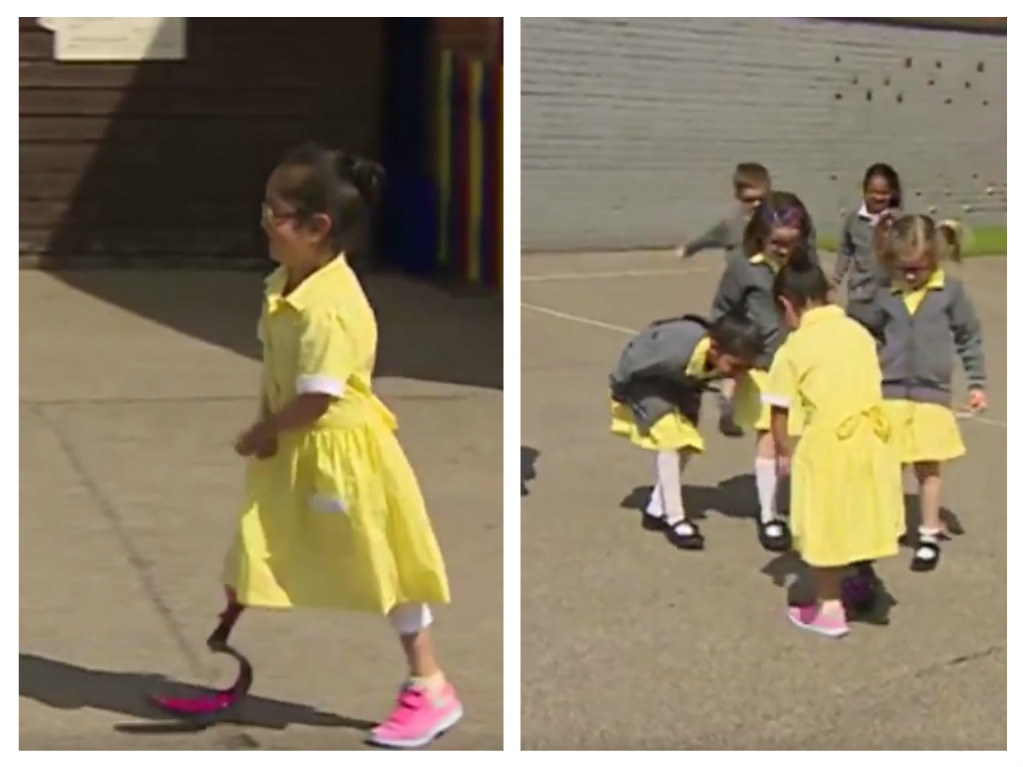 This little girl showed off her new prosthetic leg, and her friends' adorable reactions are the best
