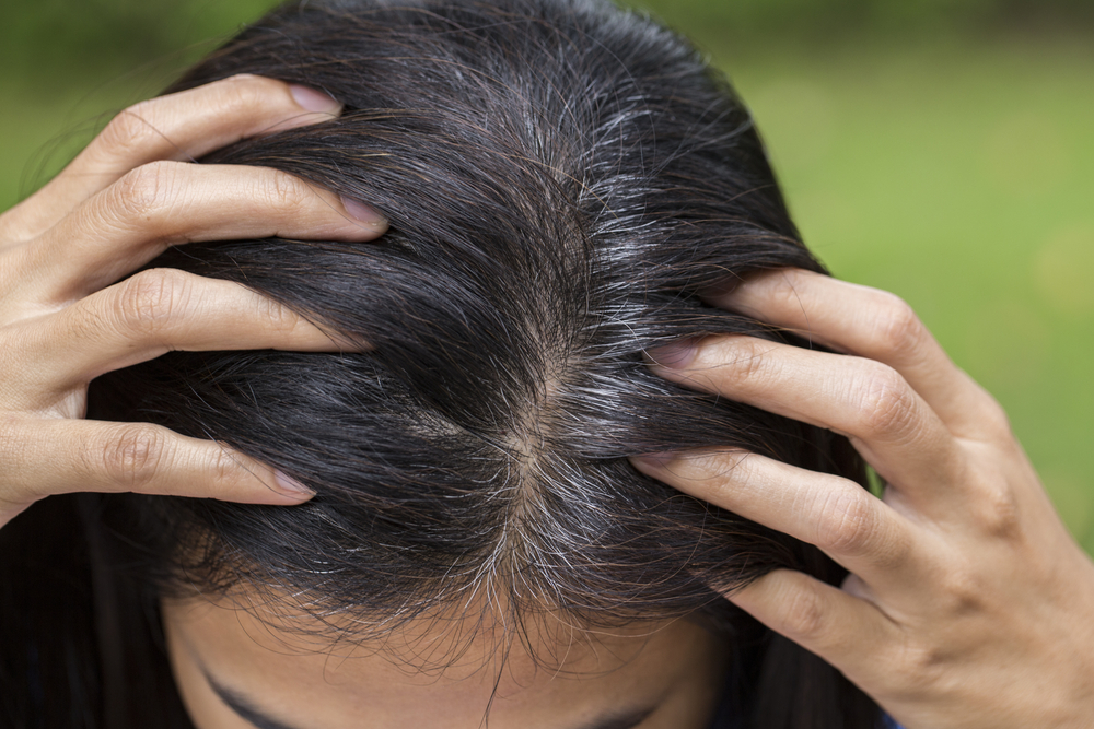 Scientists may have found the key to stop people from balding and going gray