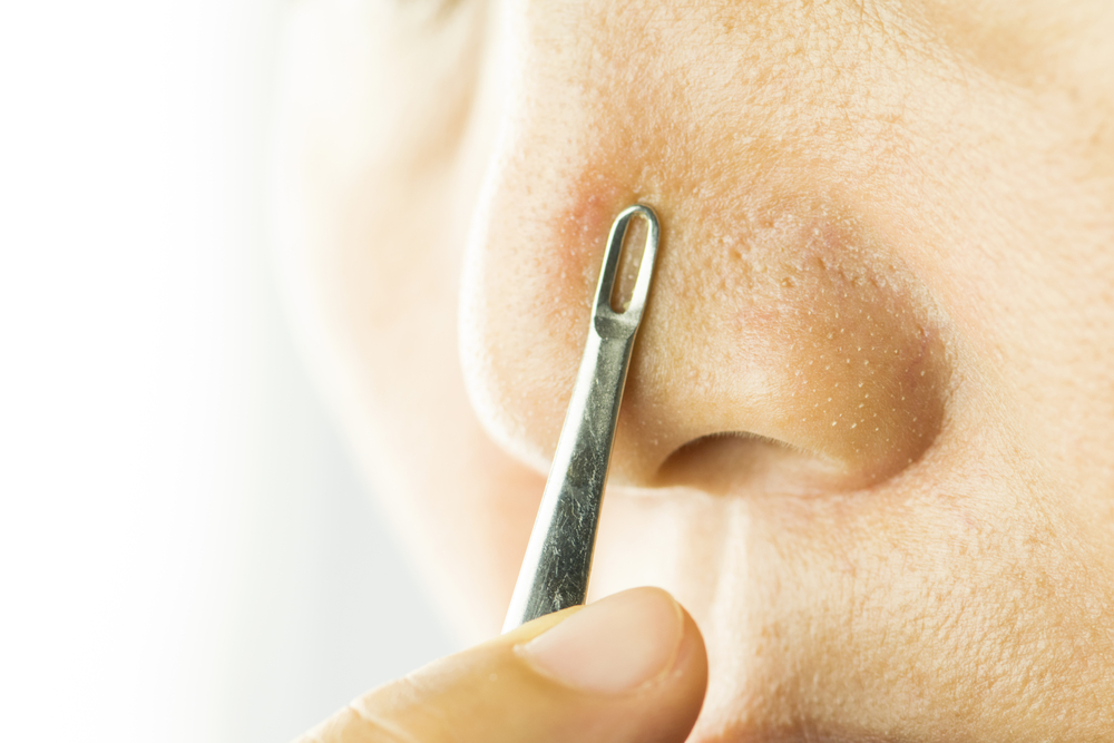 This new method of removing blackheads is freaky, but we can't look away
