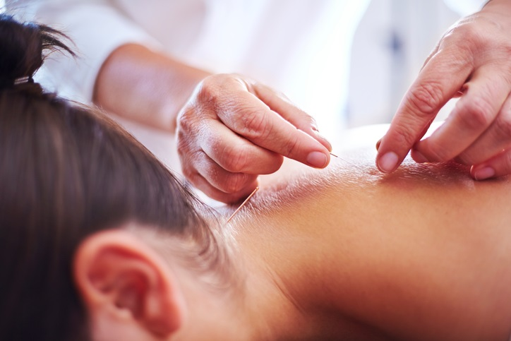 Acupuncture helps me cope with anxiety, so I asked an acupuncturist to explain why