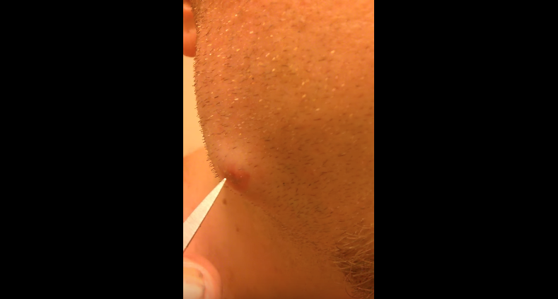 This man popped his own tooth cyst in a video we can't watch twice