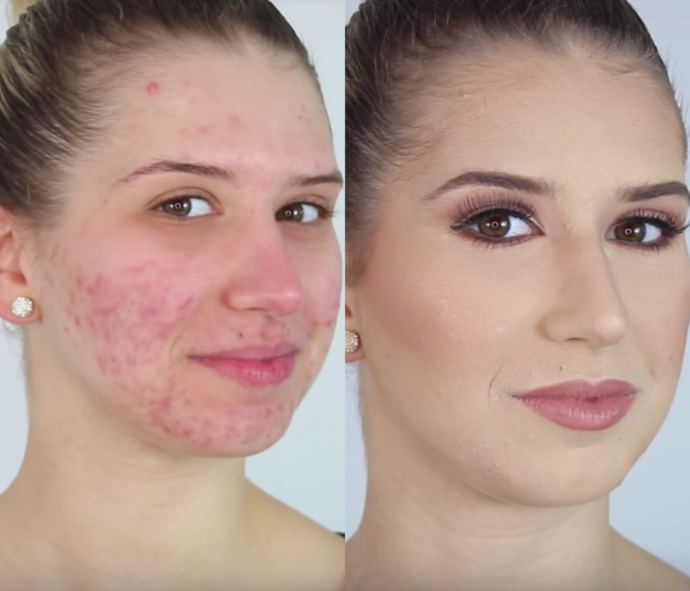 Best makeup to cover acne
