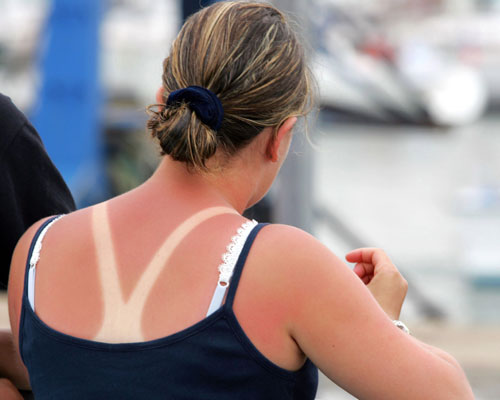 Science knows exactly how to fix sunburns and we're SO grateful