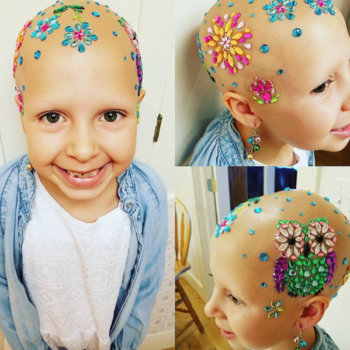 "This bald little girl found a dazzling way to participate in her school's ""Crazy Hair Day"""