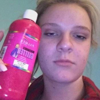 This girl accidentally dyed her entire face pink, and of course the pic is going viral