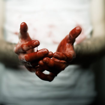 This woman sweats blood due to a scary medical condition