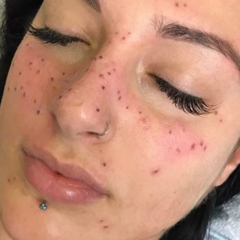 "You can now get ""freckle tattoos"" in the shape of your astrological sign"