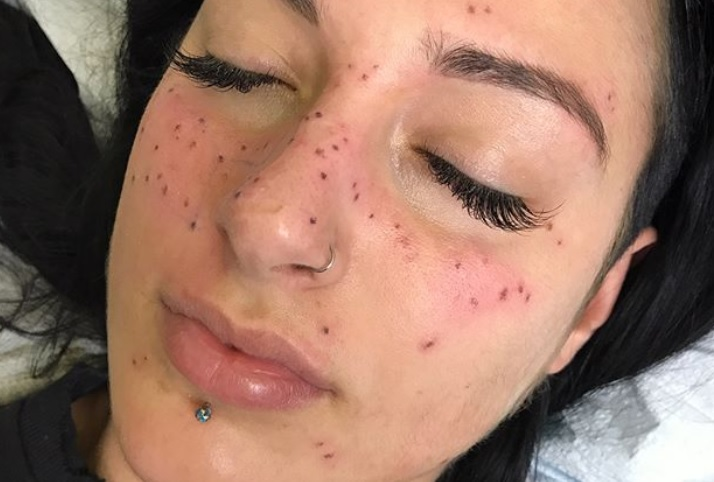 """You can now get """"freckle tattoos"""" in the shape of your astrological sign"""