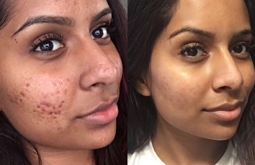This woman's cystic acne routine has set Twitter ablaze, but here's what an expert thinks