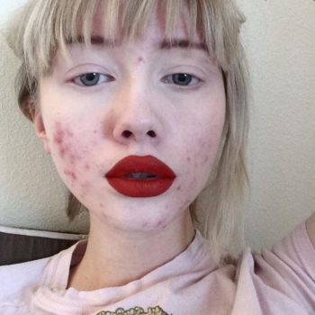 Acne doesn't make you less beautiful, and this woman's photos prove it