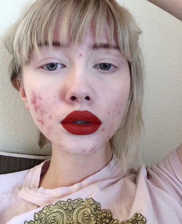 Acne Doesnt Make You Less Beautiful, And Hailey Waits -4096