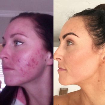 This food blogger kept it real about her cystic acne scars in this powerful before and after post