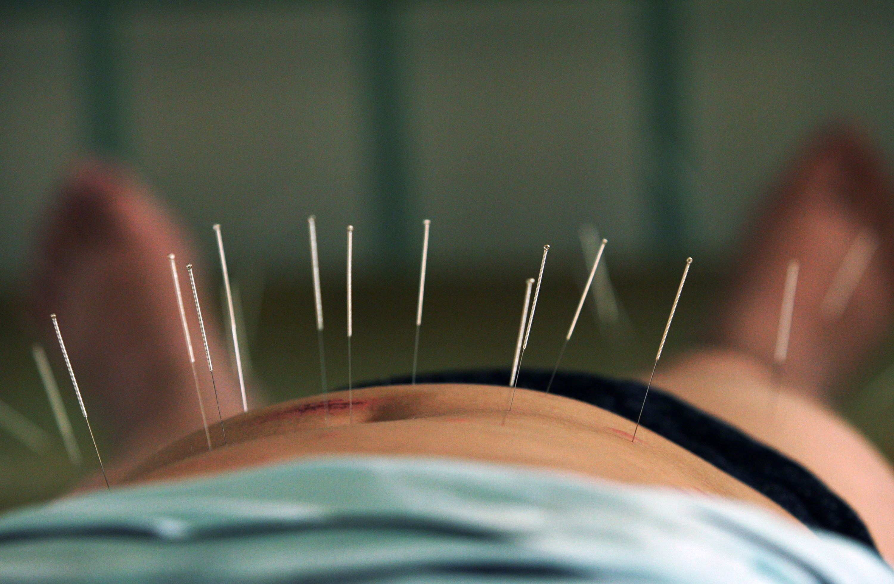 Does acupuncture work for menstrual cramps? We tried it and talked to four experts