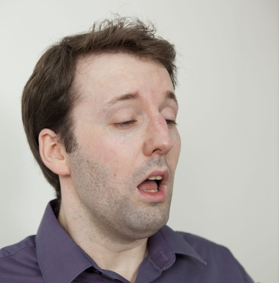 This man blew a hole in his throat by keeping in a sneeze, and we have no words