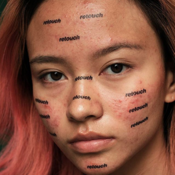 A photographer created a series of un-retouched acne photos, because acne-prone skin is SO normal
