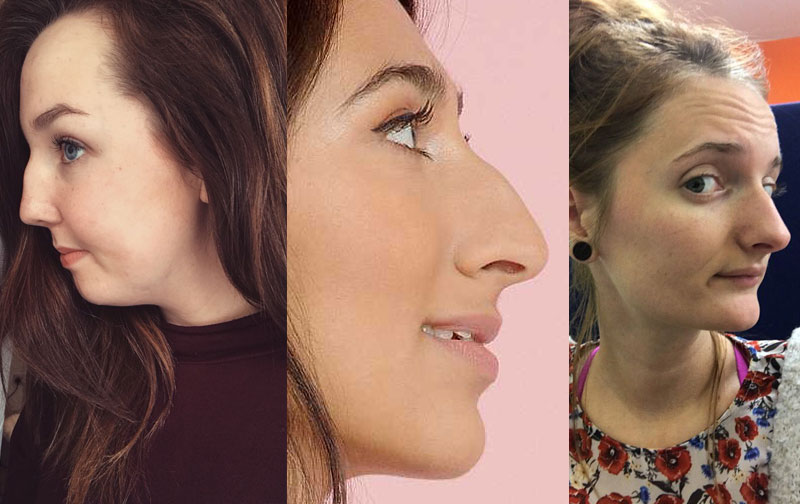 Women are sharing pics of their noses in profile to remind us that all noses are beautiful