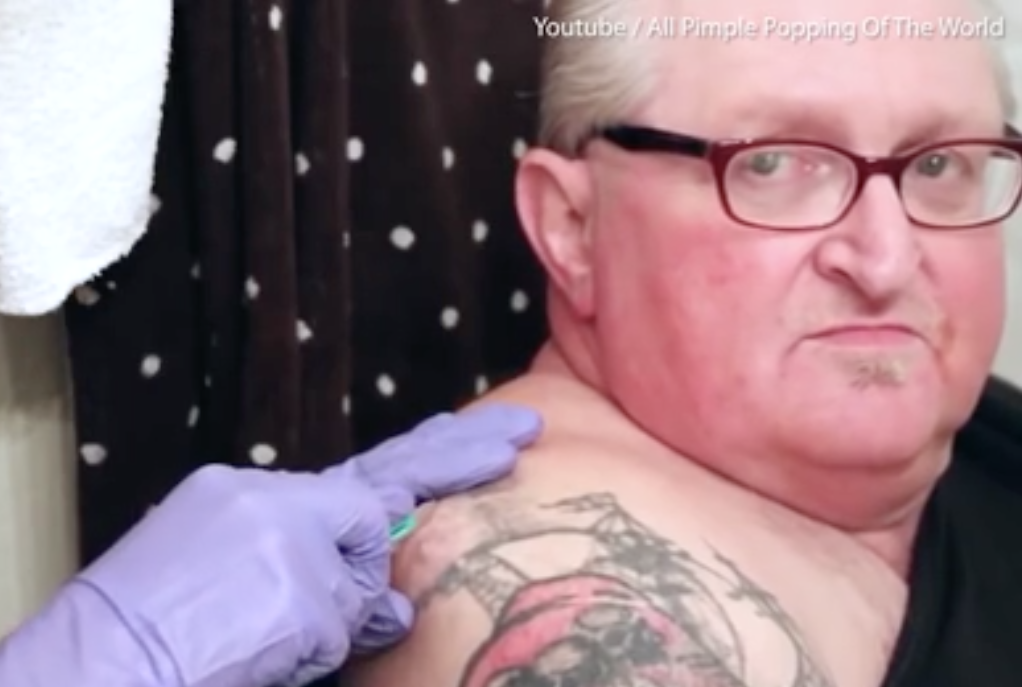 This man's ancient back cyst was popped in a video we can't watch twice