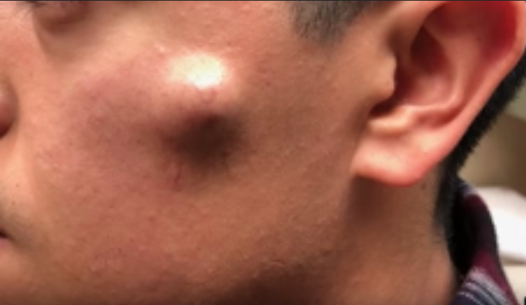 This video of a cheek cyst being removed will make you break out into cold sweats