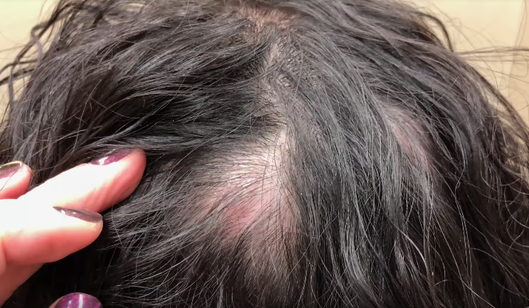 Our heads hurt after watching this woman have her scalp cyst popped