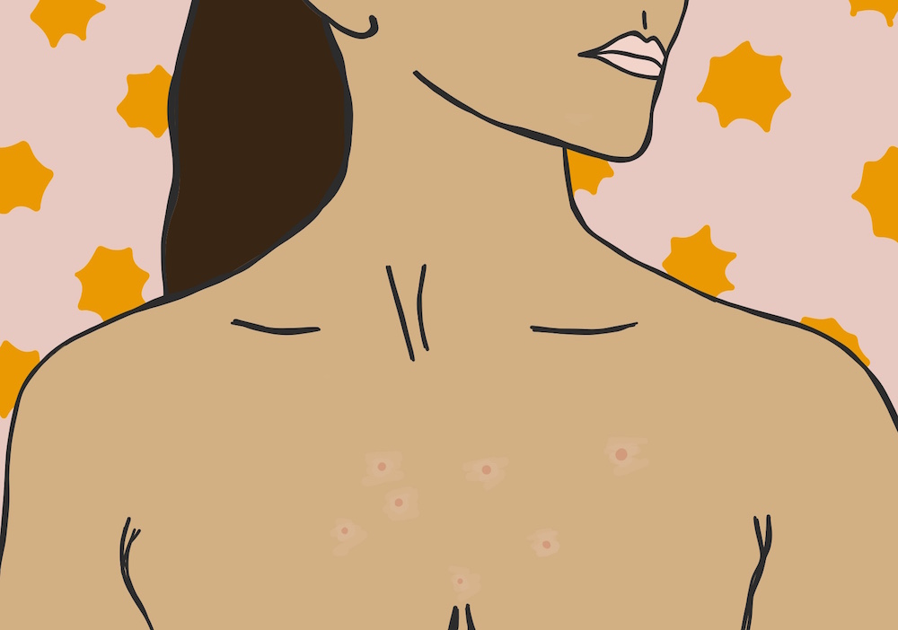 How to prevent annoying chest acne during a sticky, hot summer