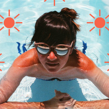 How to heal a sunburn, because summer isn't even close to over