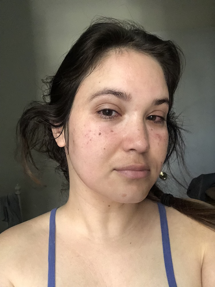Clear + Brilliant Laser Skin Care Treatment Honest Review