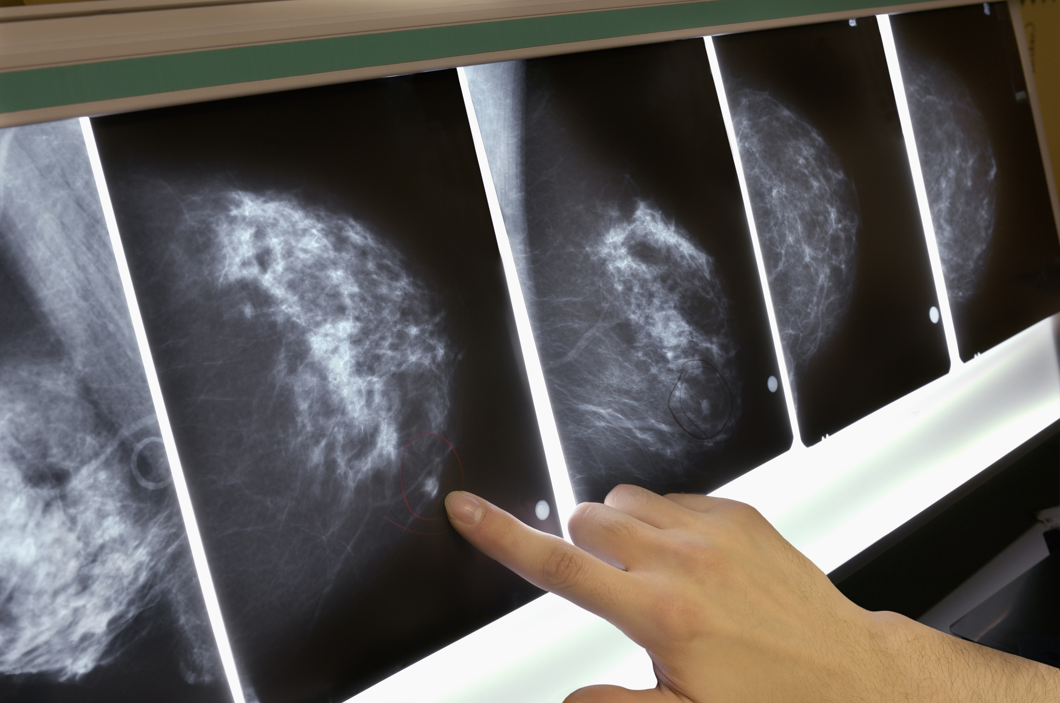 26 breast cancer myths doctors want you to stop believing