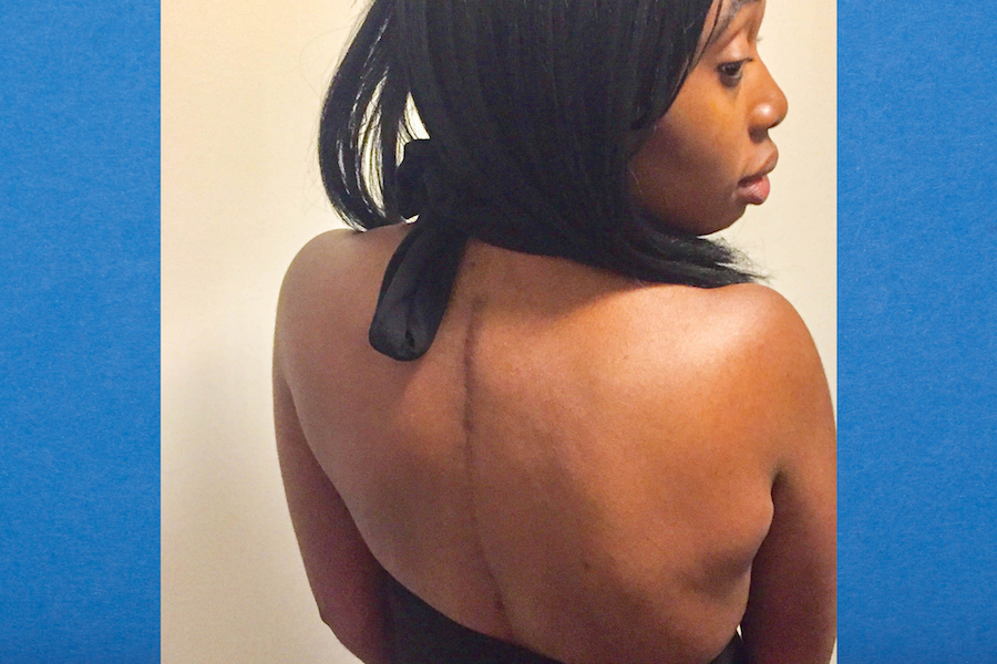 Scoliosis taught me to respect my body for what it can do, instead of for how it looks