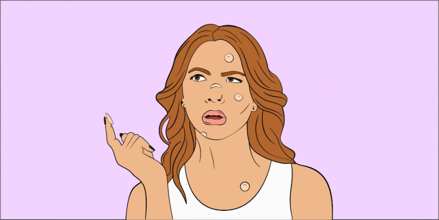 The truth about how those trendy acne patches really work
