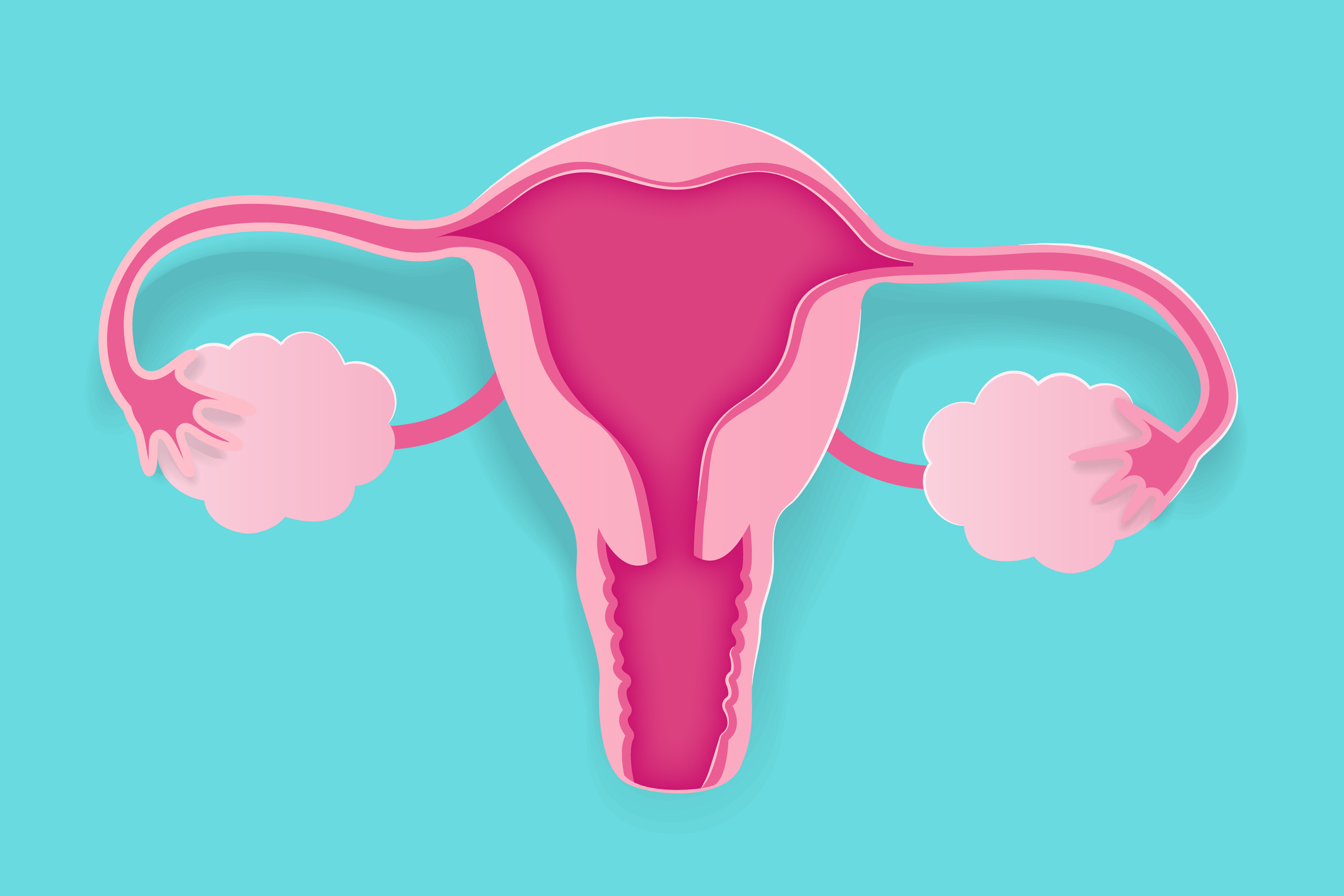 Your questions about ovarian cancer answered: from early symptoms to treatment