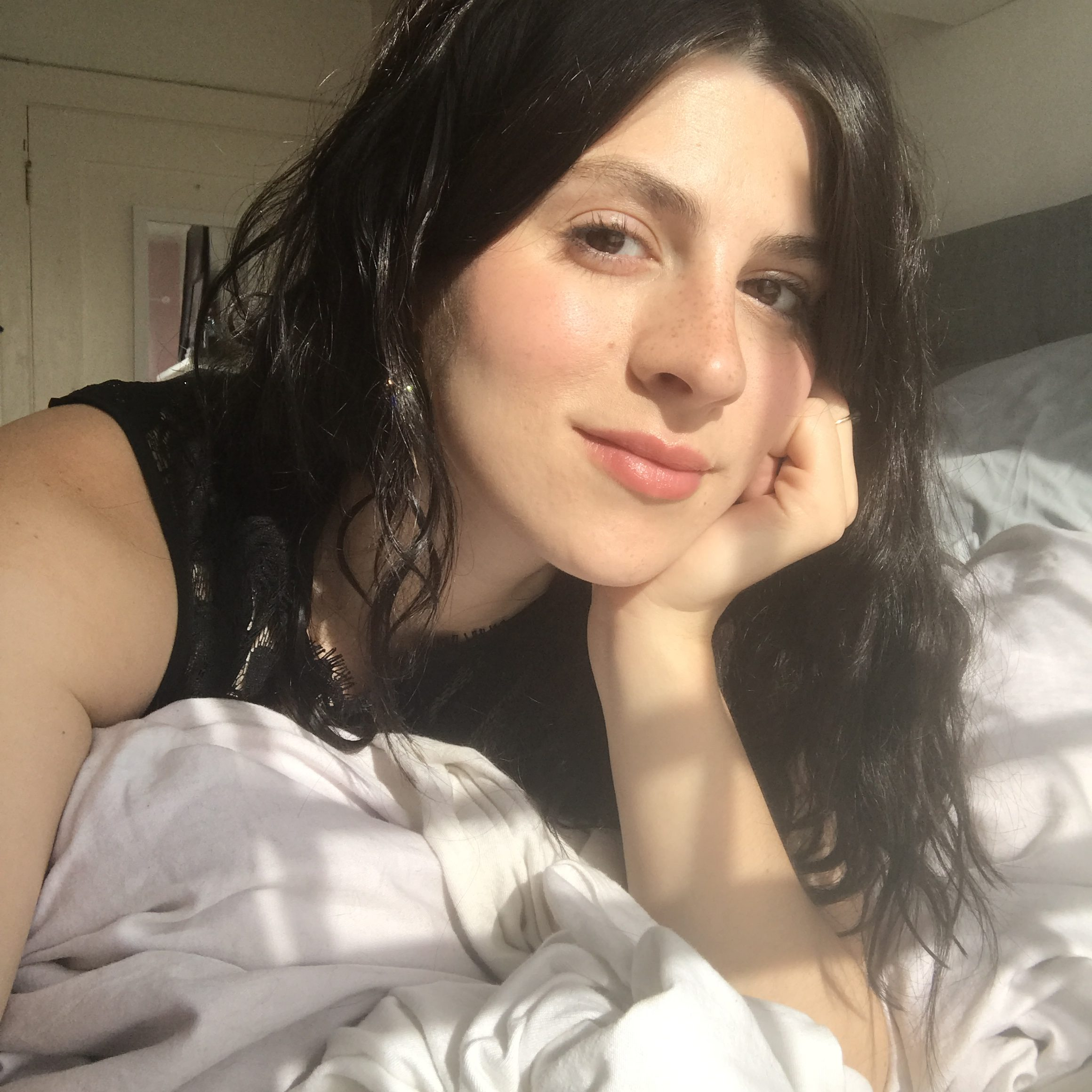 How natural ingredients saved my skin after a steroid prescription wreaked havoc on it