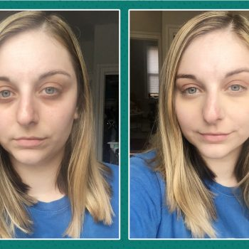 Holy grail find: The only concealer that hides my under-eye bags completely
